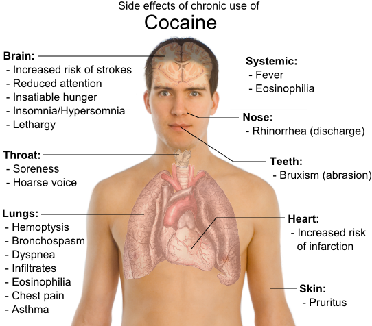 Side Effects of Chronic use of Cocaine